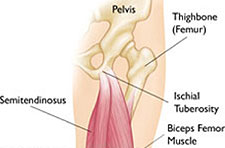 article-hamstring