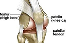 article-patella