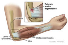 article-tenniselbow